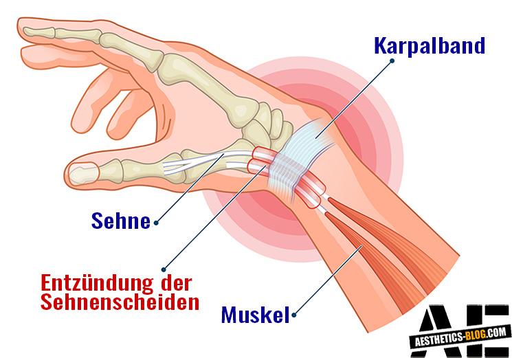 Sehnenscheidenentzündung am Handgelenk